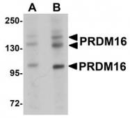 NBP1-77096 - PRDM16