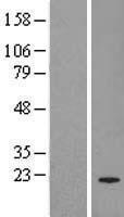 NBL1-14961 - PRL-3 Lysate
