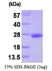 NBP1-30246 - PRL3 / PTP4A3
