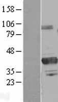 NBL1-14796 - PRMT6 Lysate