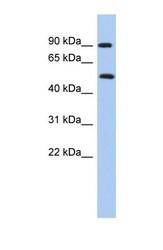 NBP1-56610 - PRMT7