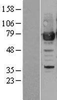 NBL1-14797 - PRMT7 Lysate