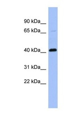 NBP1-58974 - Properdin