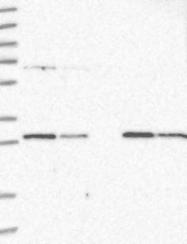 NBP1-85989 - PROSC
