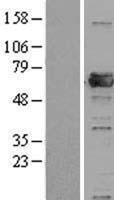 NBL1-14819 - PRPF31 Lysate