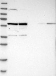 NBP1-83217 - PRPF4
