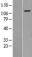 NBL1-14823 - PRPF4B Lysate