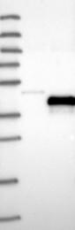 NBP1-86687 - Peripherin-2