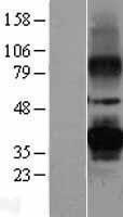 NBL1-14826 - PRPH2 Lysate