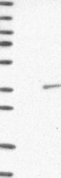 NBP1-89919 - TP53RK