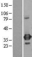 NBL1-14827 - PRPS1 Lysate