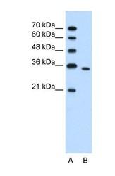 NBP1-56666 - PRPS2