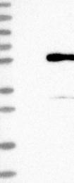 NBP1-86756 - PRSS35