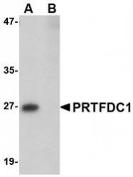 NBP1-76358 - PRTFDC1