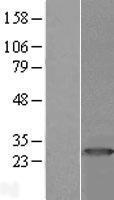 NBL1-14849 - PRTFDC1 Lysate
