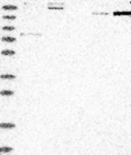 NBP1-82051 - Protogenin / PRTG