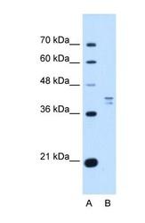NBP1-55368 - PSAT1