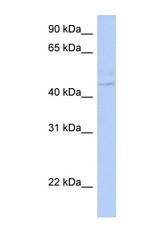 NBP1-56913 - Cytohesin 4