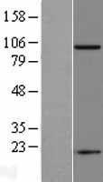 NBL1-10789 - PSMA Lysate
