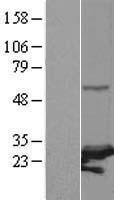 NBL1-14889 - PSMC3IP Lysate