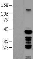 NBL1-14893 - PSMC6 Lysate