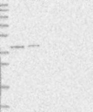 NBP1-80961 - PSMD13