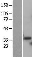 NBL1-14899 - PSMD14 Lysate