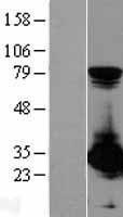 NBL1-14907 - PSME1 Lysate