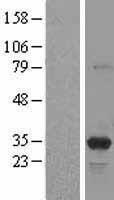 NBL1-14909 - PSME3 Lysate