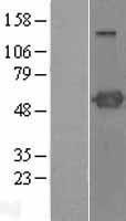 NBL1-14915 - PSTPIP1 Lysate