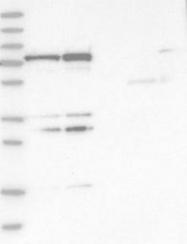 NBP1-81493 - PTCD1