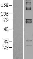 NBL1-14921 - PTCD1 Lysate