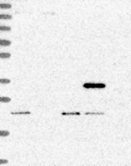 NBP1-92303 - PTCD2