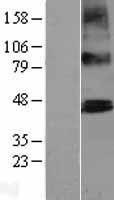 NBL1-14922 - PTCD2 Lysate