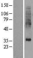 NBL1-14925 - PTDSS1 Lysate
