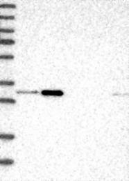 NBP1-86709 - PTGES2