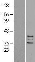 NBL1-14936 - PTGES2 Lysate