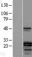 NBL1-14948 - PTHLH Lysate