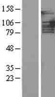 NBL1-14134 - PTIP Lysate