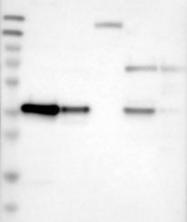 NBP1-90297 - Twinfilin-1 (TWF1)