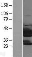 NBL1-17458 - PTK9 Lysate