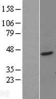 NBL1-14958 - PTOV1 Lysate