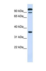 NBP1-62460 - PTPRE