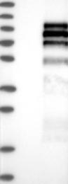 NBP1-87189 - PTPRE