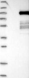 NBP1-81949 - PTPDC1