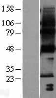 NBL1-14964 - PTPLA Lysate