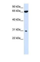 NBP1-59414 - PTPLAD2