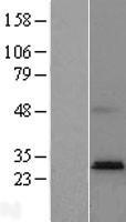 NBL1-14965 - PTPLAD2 Lysate