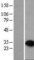 NBL1-14982 - PTPRCAP Lysate