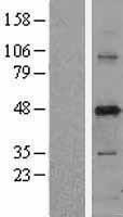 NBL1-14996 - PUS1 Lysate